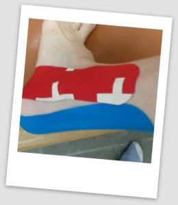 taping plantar fasciaitis